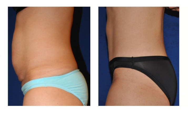 coolsculpting-belly-before-after-photos