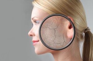 Cracked-Skin-Profile for Dec 2015 Newsletter